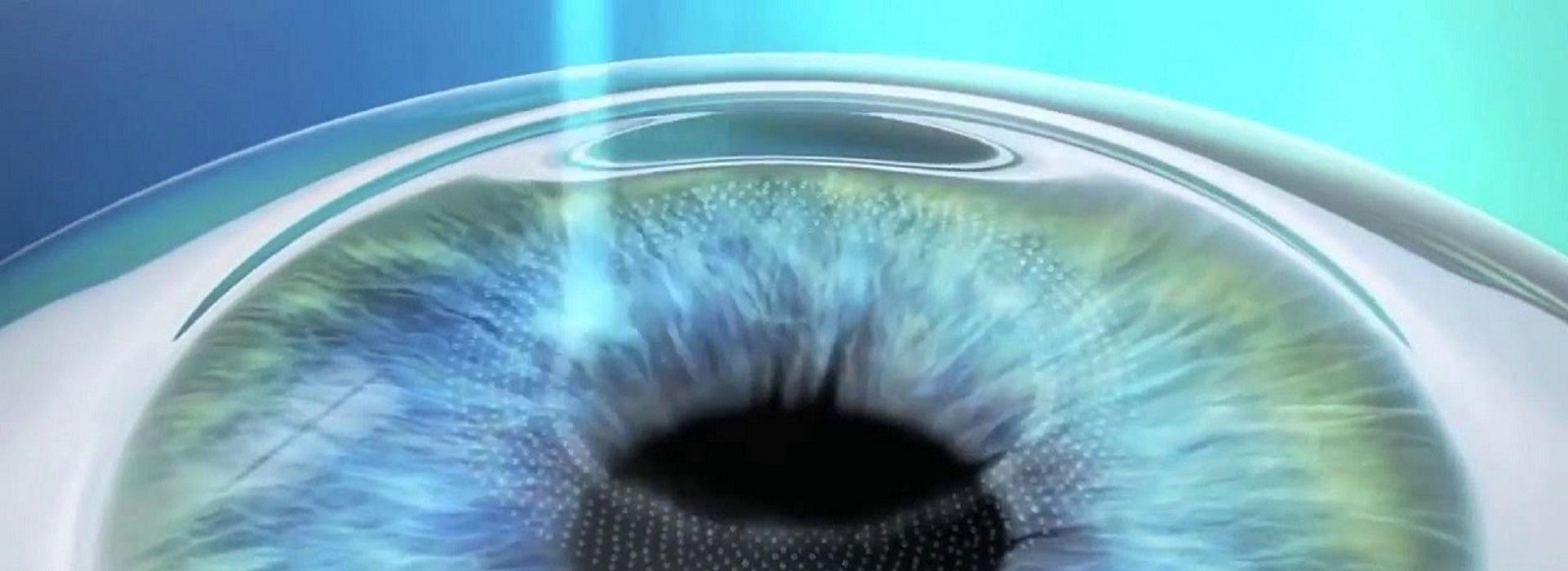 prix opération des yeux au laser marseille